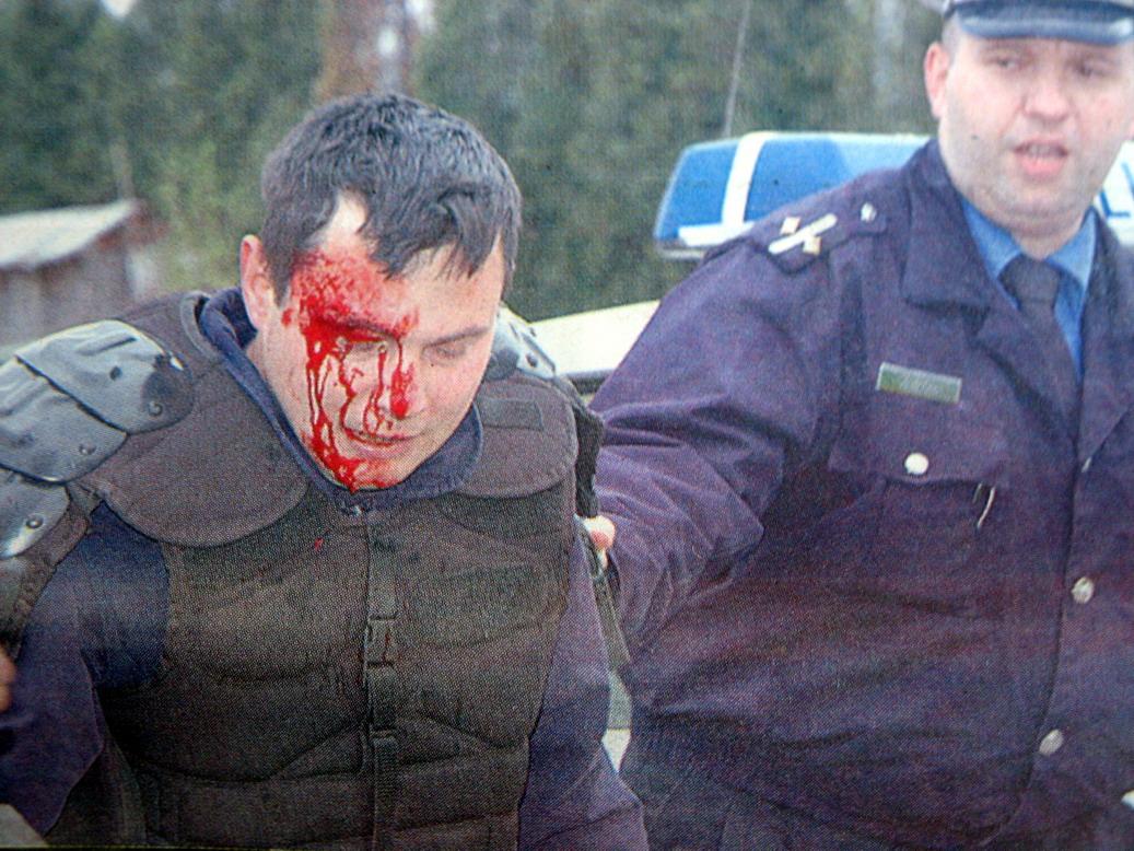 pirot, povredjeni policijac na utakmici sa radom