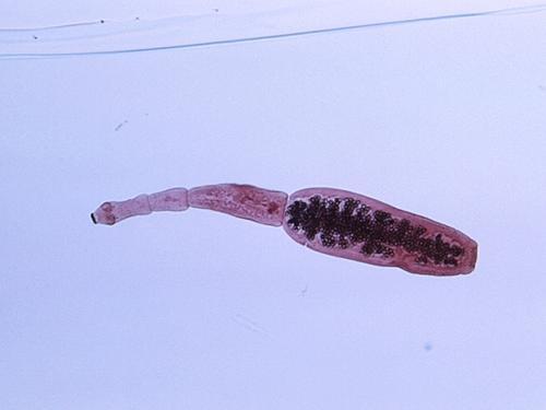 Photo of Ponovo aktuelne ehinokokusne bolesti jetre