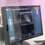 Savremena dijagnostika u Dimitrovgradu