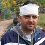Sukobi u Toplom Dolu, bilo i povređenih (FOTO I VIDEO)